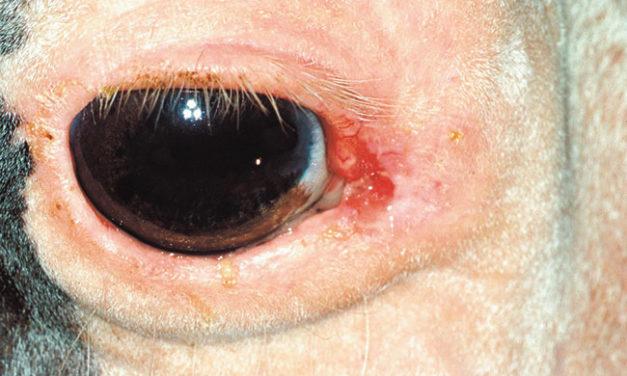 Novel Treatment for Ocular Squamous Cell Carcinoma Looks Promising
