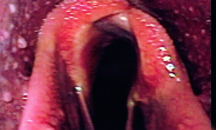 Study: Modified Surgery for Roaring Treatment Effective