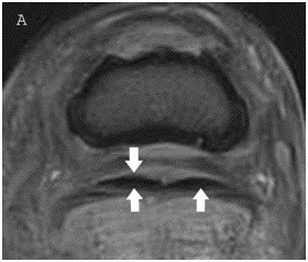 Digital Neurectomy Outcome in Horses with Chronic Foot Pain