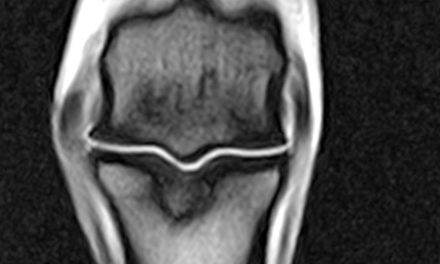 Long Pastern Bone Damage in Sport Horses