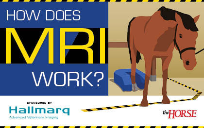 Infographic: How Does MRI Work?